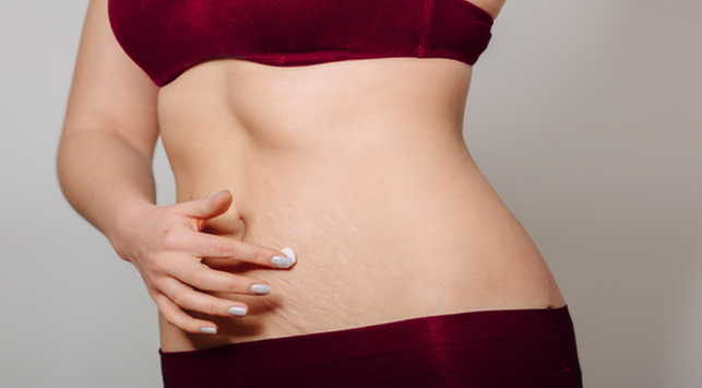 fakta stretch mark, apa itu stretch mark, cara menghilangkan stretch mark