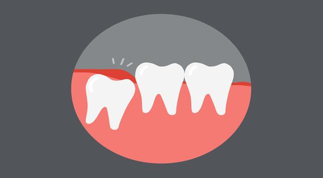 mengenal impaksi, penyebab impaksi, mencegah impaksi, penyebab gigi bungus gagal tumbuh, merawat gigi