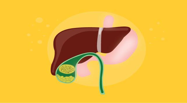 Kolesterol tinggi, penyebab batu empedu