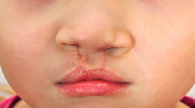 bibir sumbing, penyebab bibir sumbing, cleft lip