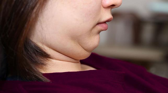 Double chin, lemak di bawah dagu, berat badan