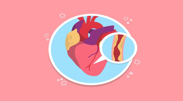 penyumbatan jantung, pembuluh darah yang tersumbat