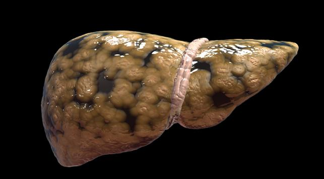 fatty liver, gastritis, gangguan lambung
