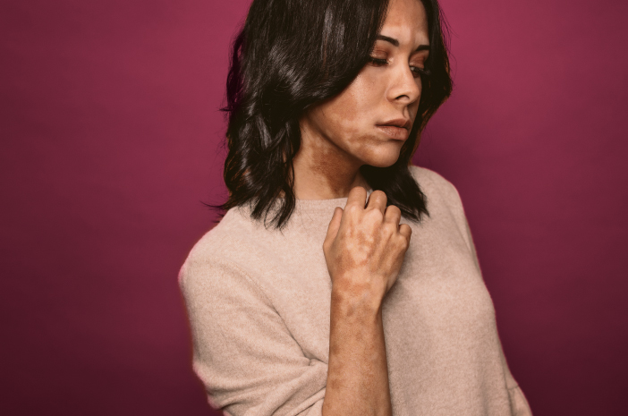 Cara Pencegahan Vitiligo yang Dapat Dilakukan dengan Mudah