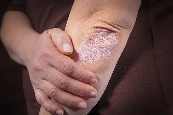 Kenali Gejala dan Penyebab Psoriasis yang Bisa Menyebar ke Seluruh Tubuh