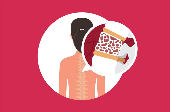 Ketahui 4 Penyebab Osteoporosis pada Wanita
