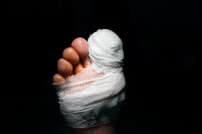 Ketahui Pencegahan dan Penanganan Gangrene