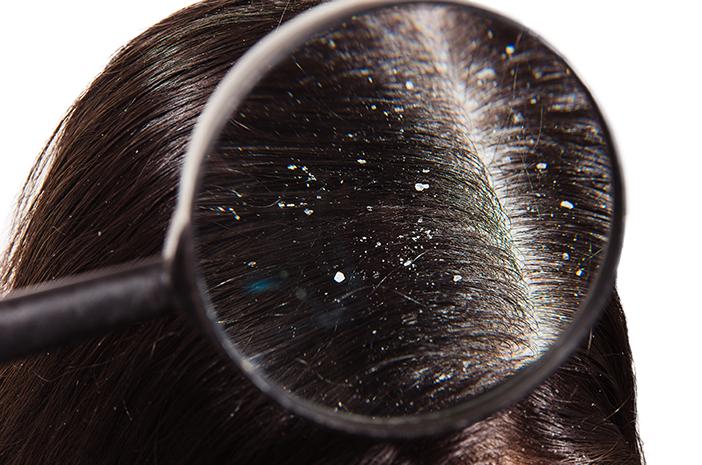 Mitos dan Fakta Unik Rambut dan Ketombe