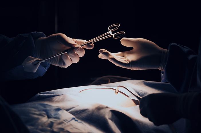 Operasi Bisa Jadi Cara Atasi Polip Rahim?