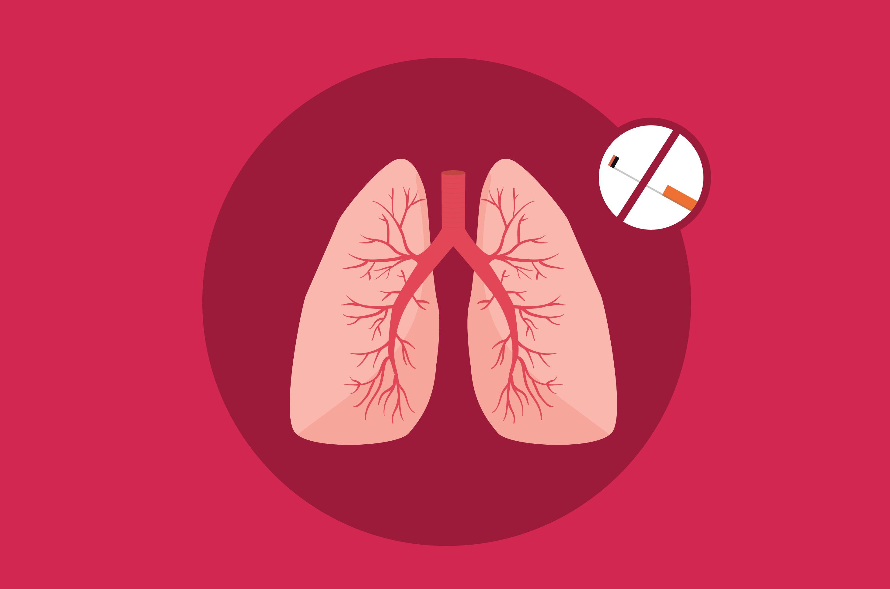 Selain Merokok, Kebiasaan Ini Menjadi Penyebab Infeksi pada Paru-Paru