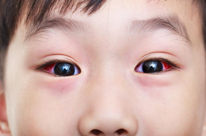 Kenali Gejala Retinoblastoma yang Sering Dialami Anak