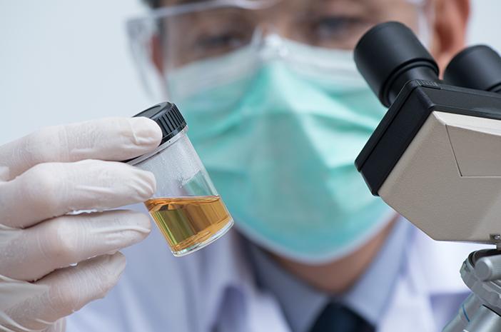 Urine Berbuih Benarkah Jadi Pertanda Terkena Sindrom Nefrotik?