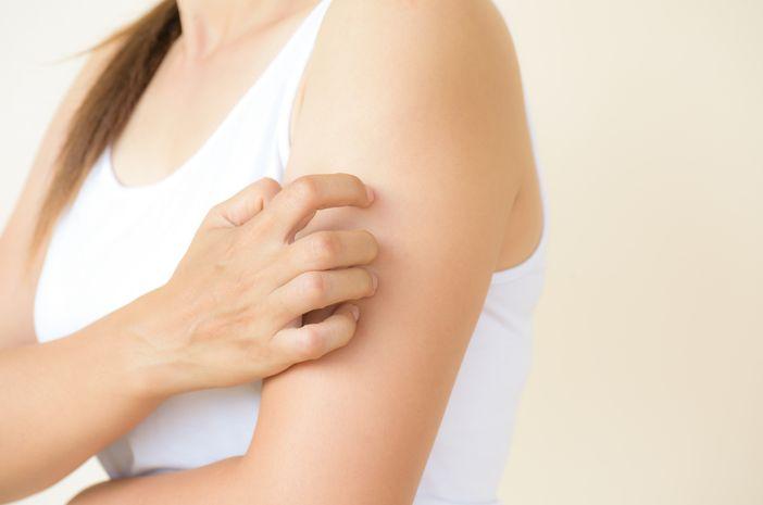 Virus Herpes Bisa Sebabkan Gangguan Kulit Pityriasis Rosea