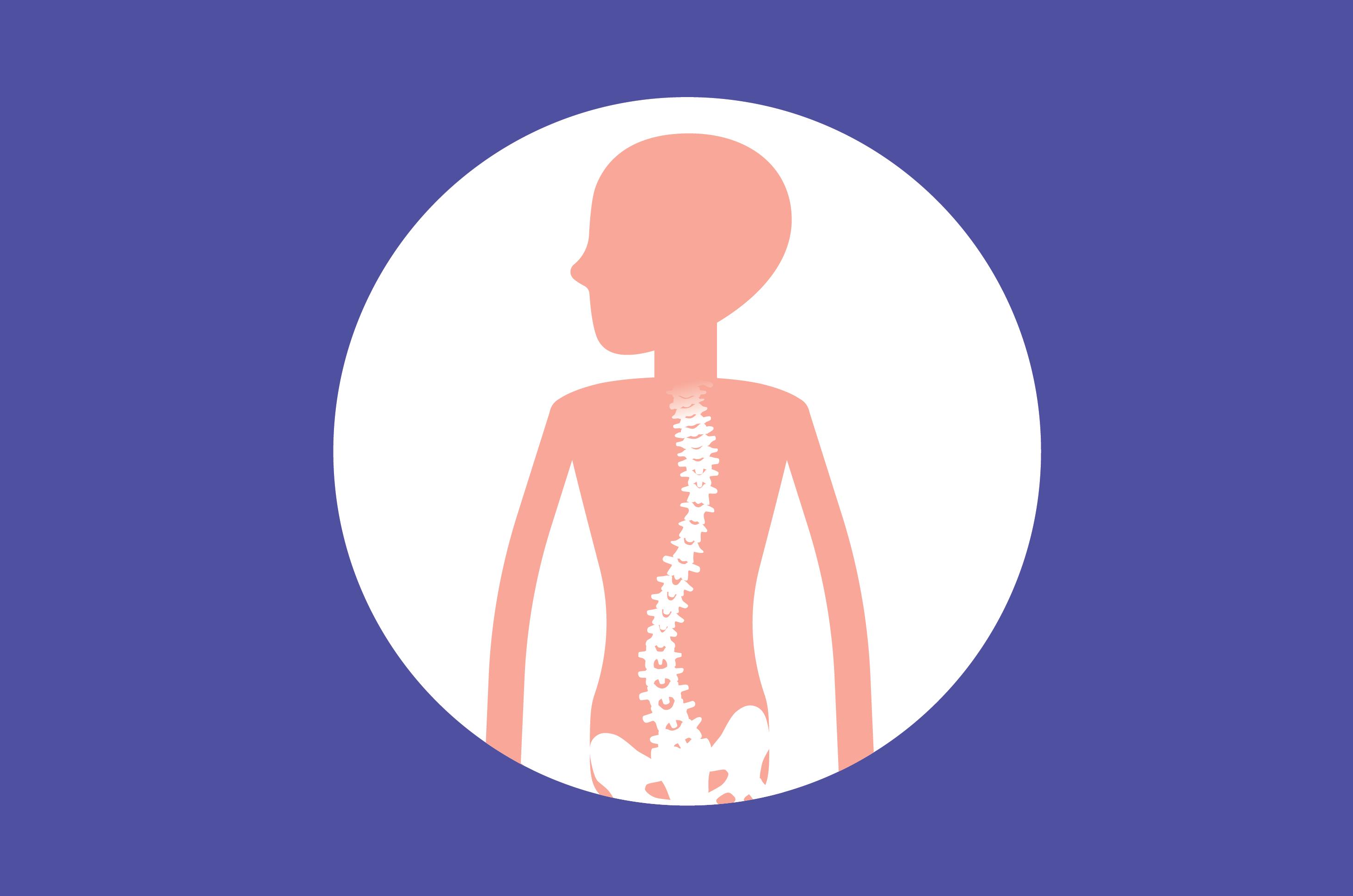 Waspada Tulang Belakang Melengkung atau Skoliosis