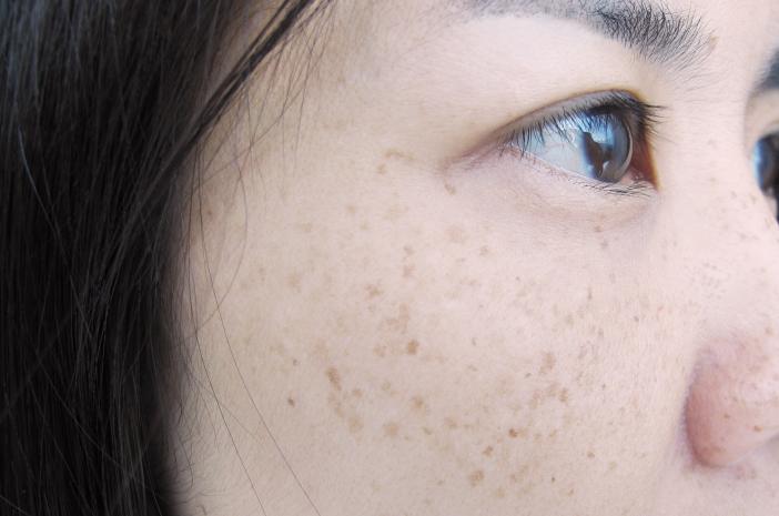 6 Cara Jitu Atasi Masalah Flek Hitam pada Wajah